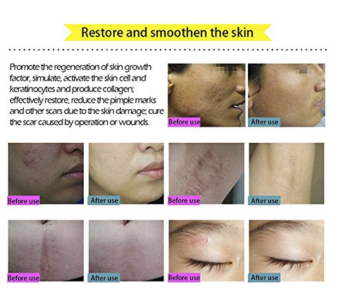 Image of Natural Scar Removal Cream