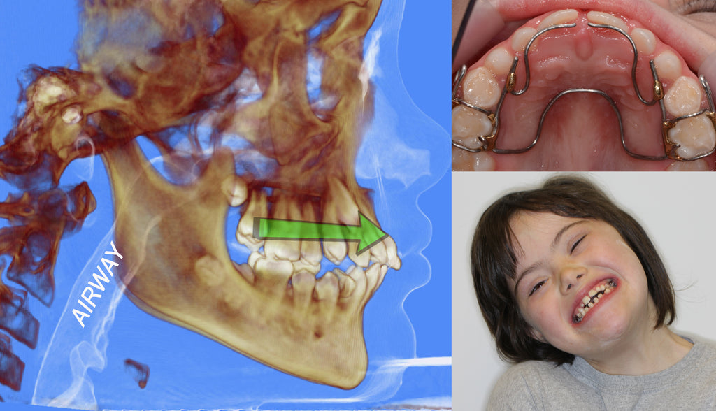 NEW COURSE! Airway, Apnea, Orthodontics, and OPT - selfstudy Talk-Tools