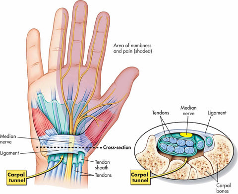 Nerves in hand and wrist that lead to arthritis when lifting