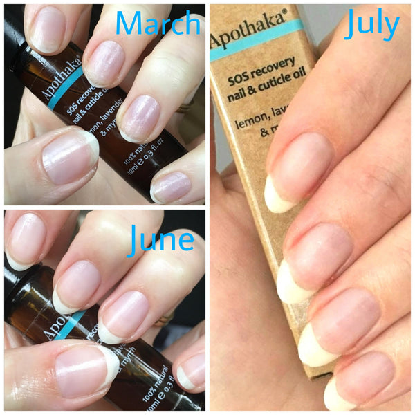 Apothaka SOS recovery nail and cuticle oil nail progress