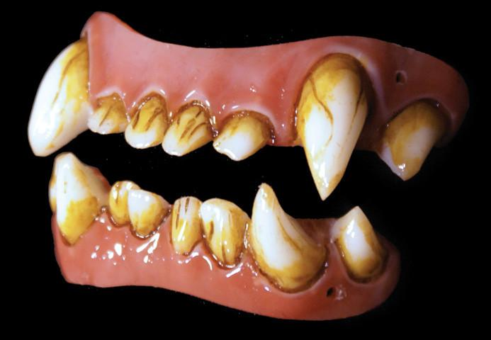 Dental Distortions: Bad Moon Veneers