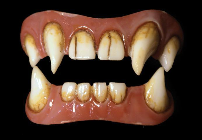 Dental Distortions: Hyde Veneers