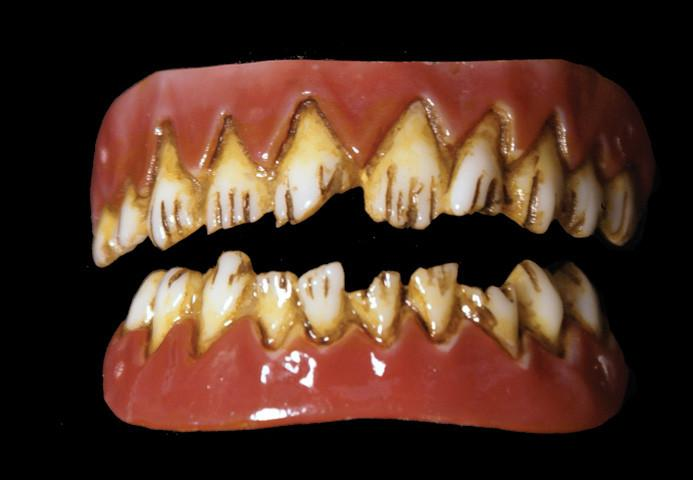 Dental Distortions: Kreeper Veneers