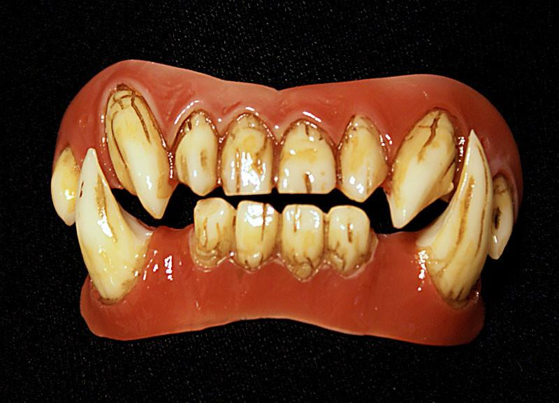 Dental Distortions: Orc Veneers
