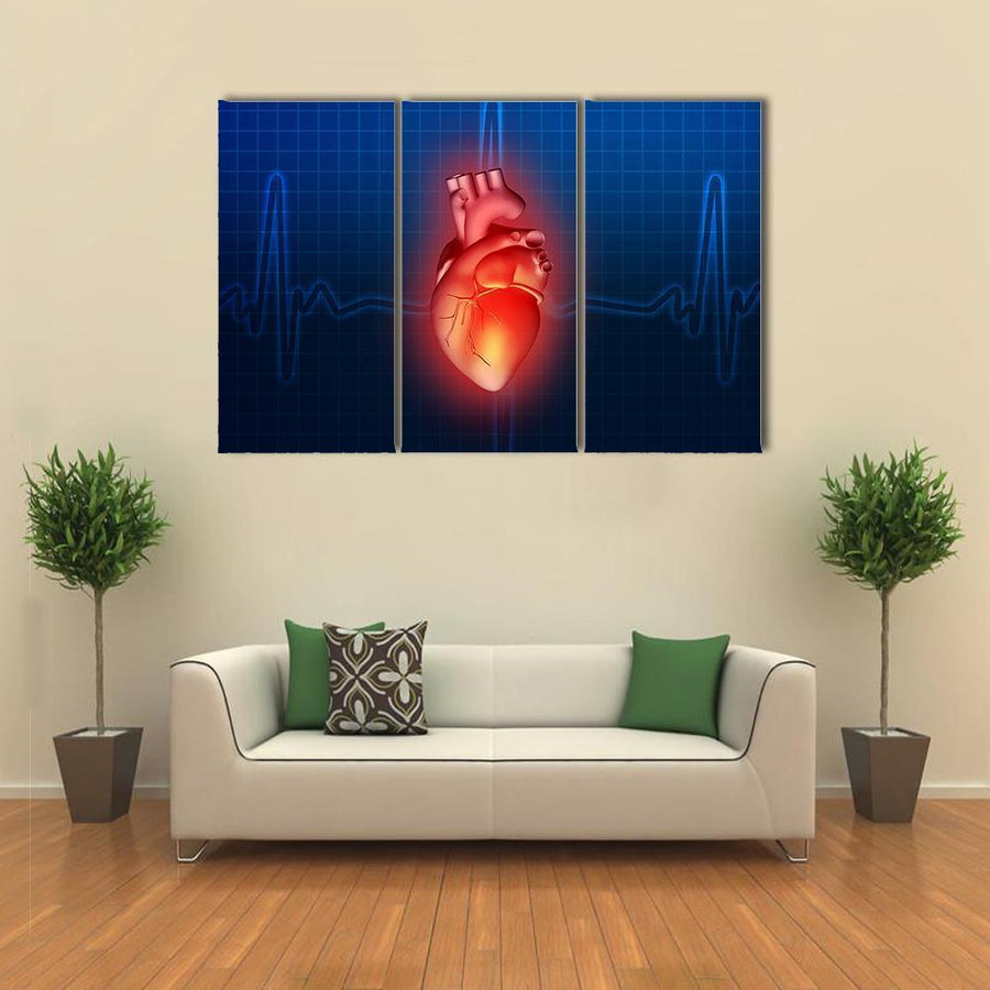 3D Illustration Of Heart Disease Multi Panel Canvas Wall Art 5 Pieces(B) / Medium / Canvas Tiaracle