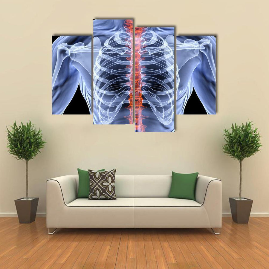 Men Backbone Under X-Rays Multi Panel Canvas Wall Art 3 Pieces / Small / Gallery Wrap Tiaracle