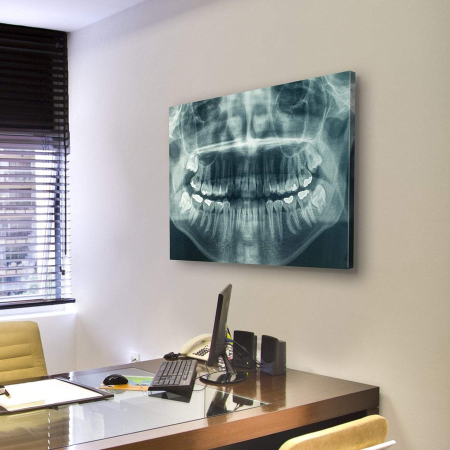 Panorama Of Dental X-Ray Multi Panel Canvas Wall Art 5 Pieces(A) / Medium / Canvas Tiaracle