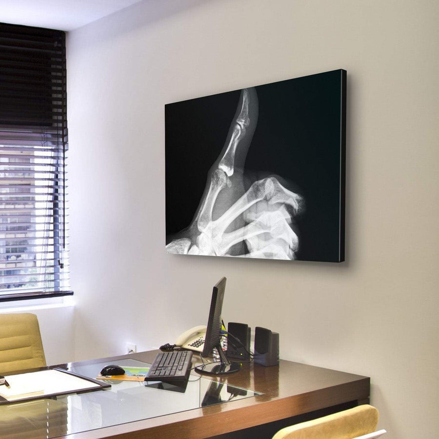 X-Ray Of Thumb Up Multi Panel Canvas Wall Art 3 Pieces / Medium / Canvas Tiaracle