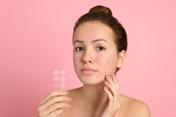 les patchs anti acné, anti boutons, anti imperfections