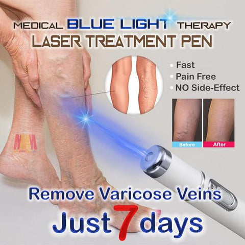Medical Blue Light Therapy Laser Treatment Pen - Indigo-Temple