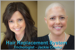 Don't let Medical Hair Loss for Chemo hold you or your style in chains. Life is so much more rewarding. Let Ms. Jackie help you in your new journey with a new image that is just beautiful as you are.