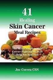 41 Healing Skin Cancer Meal Recipes: the Paperback – Import 18 Oct 2016-Books-sanapalas