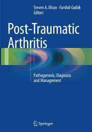 Post-Traumatic Arthritis: Pathogenesis Diagnosis and Management Paperback – Import 12 Oct 2016-Books-sanapalas