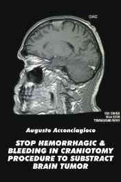 Stop Hemorrhagic & Bleeding in Craniotomy Procedure to Substract Brain Tumor Paperback – Import 25 Oct 2016 sanapalas