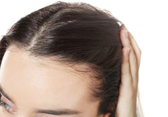 Female hair loss, biotin for hair