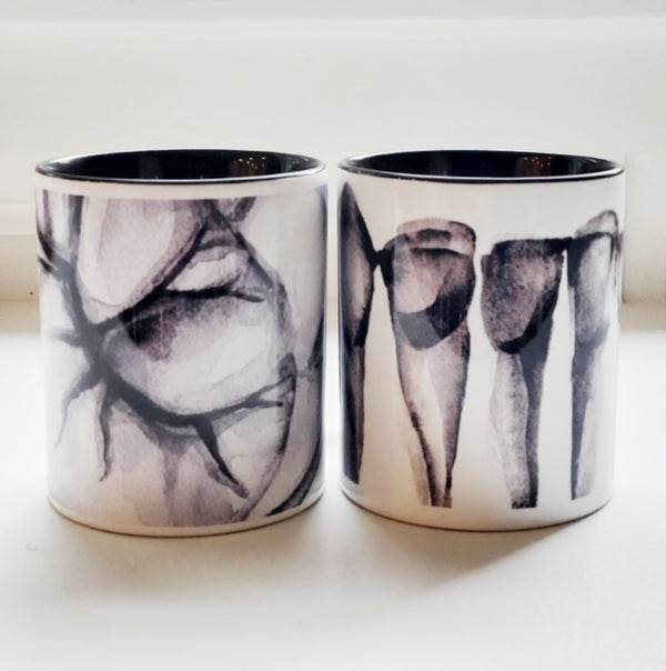 Set of 2 Dental Art Mugs