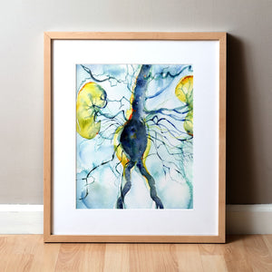 Framed Anatomical Watercolor Print of Arteriogram