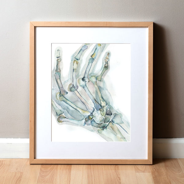 Rheumatoid Arthritis(RA) of the Hand Watercolor Print