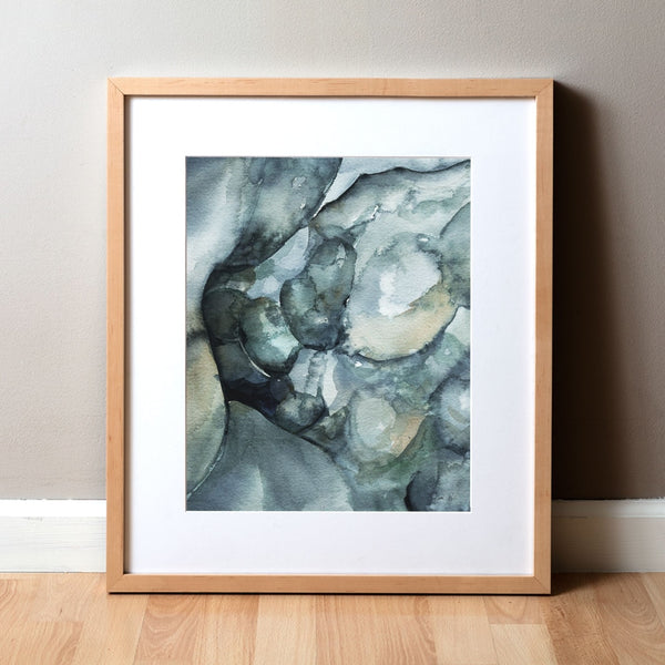 Crohn's Disease Colonoscopy Watercolor Print