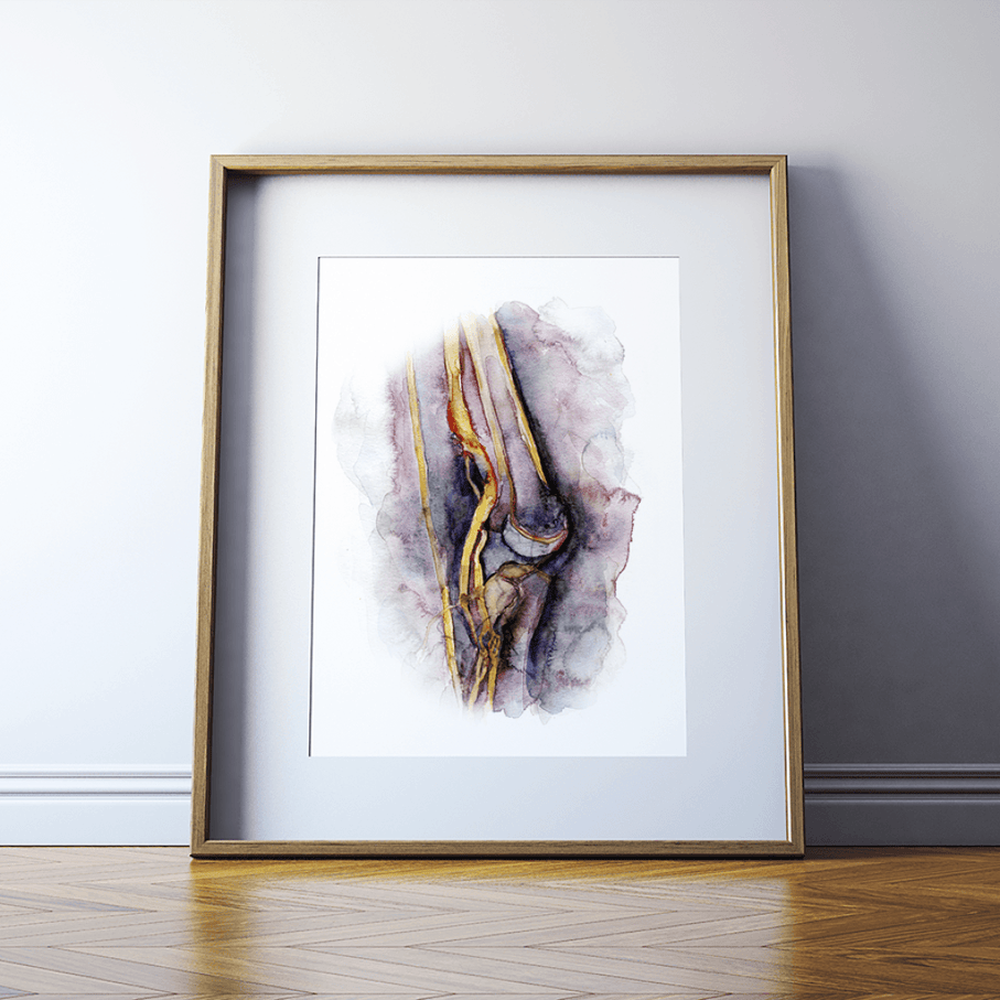 Deep Vein Thrombosis Watercolor Print