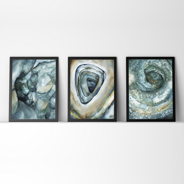 Normal, Crohn's and Ulcerative-Colitis Colonoscopy Watercolor Print Set