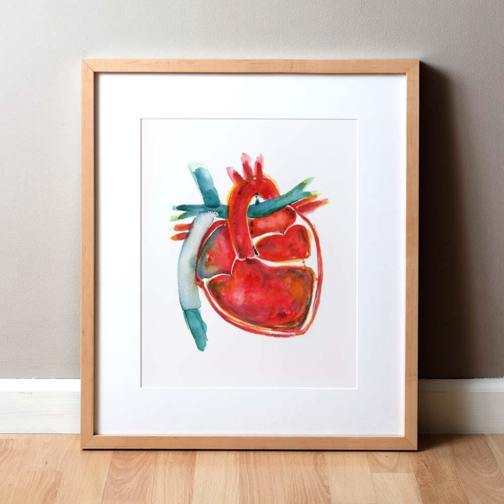 Hypoplastic Left Heart Syndrome (HLHS) Print