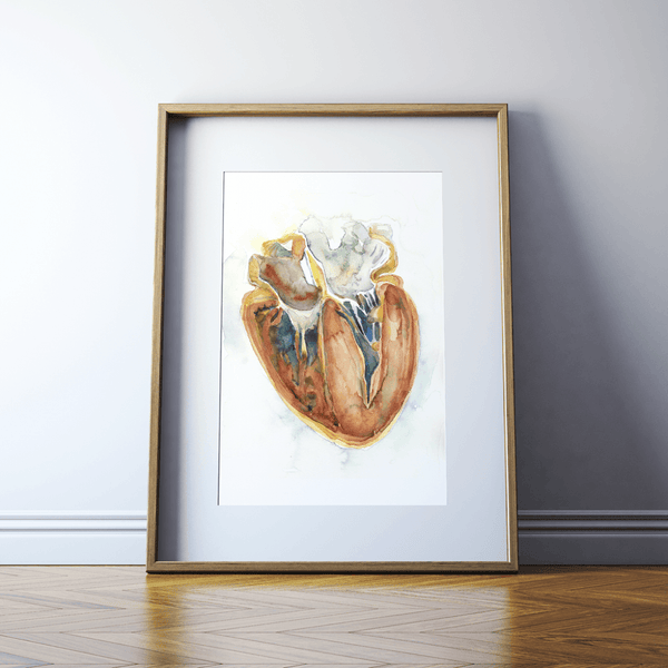 Hypertrophic Cardiomyopathy Heart Watercolor Print