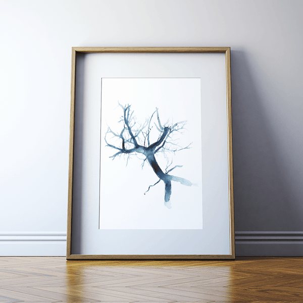 Portal Vein Watercolor Print