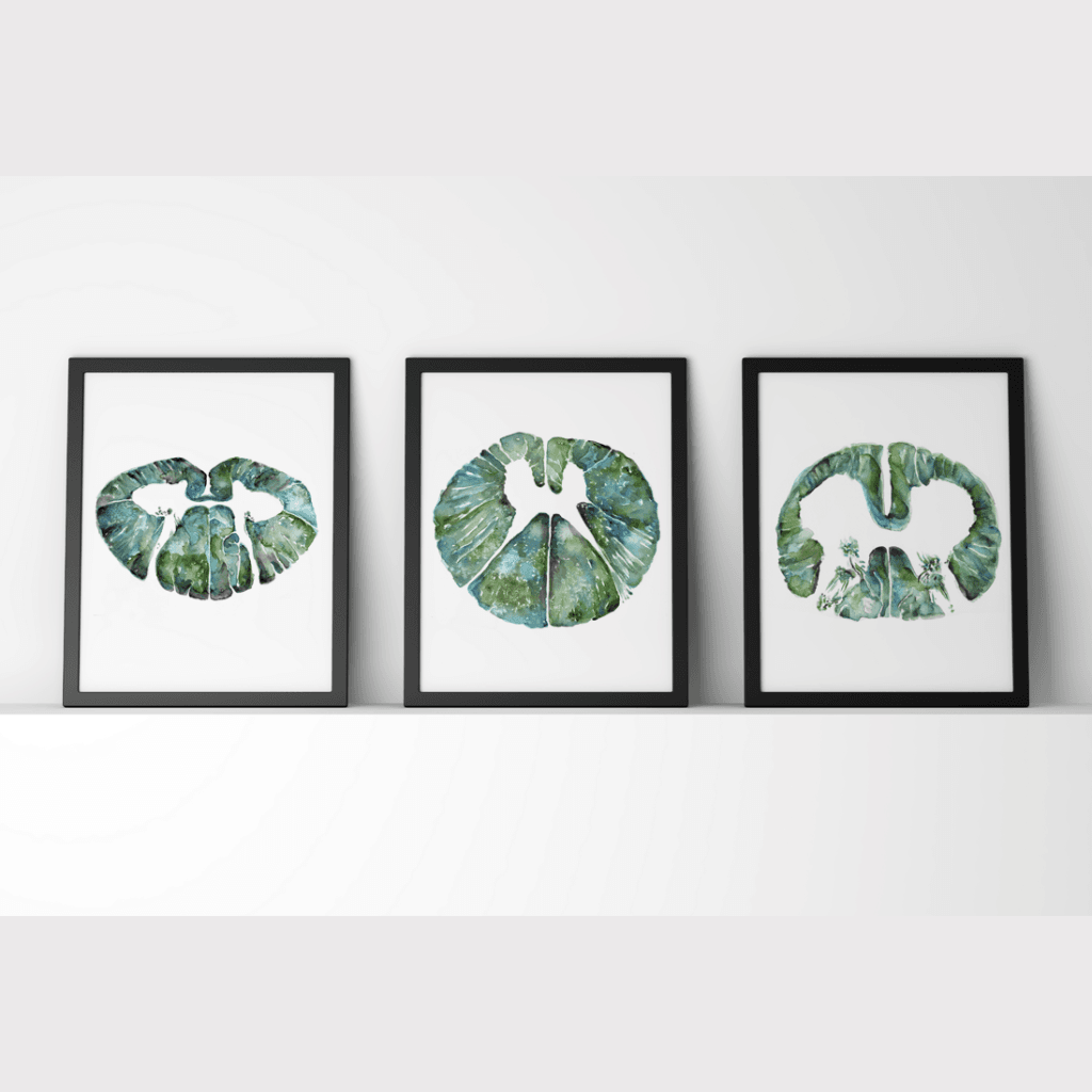 Spinal Cord Print Set of 3