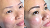 Case Study 3: Microblading old, faded PMU
