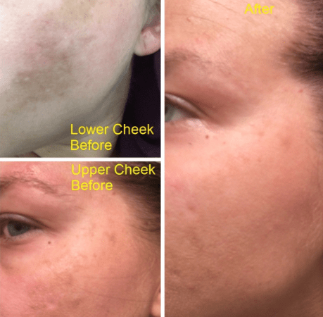 Melasma Before and After On Face