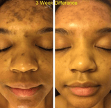 Hyperpigmentation on Dark Skin Before and After