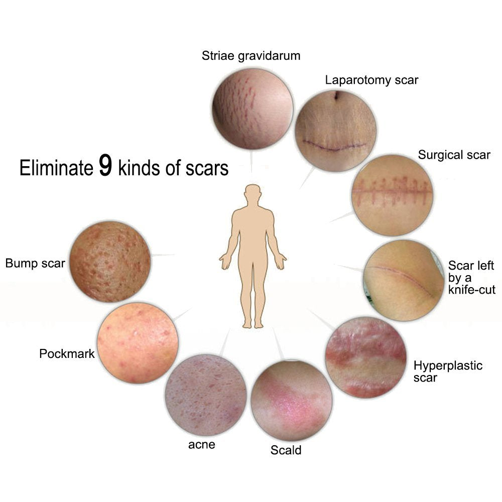Quality Gel Scar Therapy - Groove Gadgets