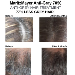 Hair Loss and Health Supplement