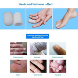 2 Pieces Gel Tube for Finger And Toe Protects Corns Ingrown Nails Blisters