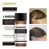 Hair Growth Essence Oil LANBENA Fast Hair Growth Natural Hair Loss Treatment