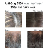 2 Anti Gray Hair Saw Palmetto Catalase Horsetail Max Strength Natural
