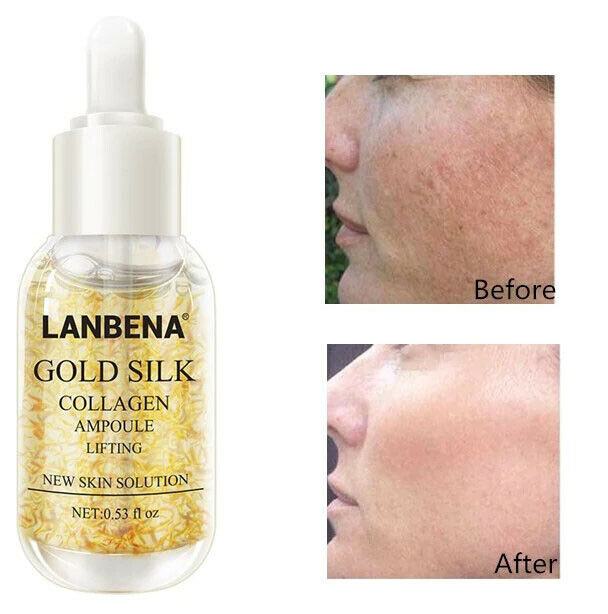 Gold Collagen Serum Whitening Removes Melanin Firming Flexible Anti Aging