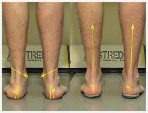 Soft Step Orthotics (USA Orders Only On This Product)
