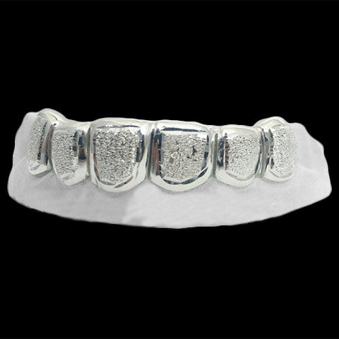 [CUSTOM-GRILLZ] 6 Piece Diamond Dust Grill - Gold Teeth - Gold Grillz - Rois D'or