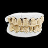 [CUSTOM-GRILLZ] Solid Gold Grillz - Gold Teeth - Gold Grillz - Rois D'or