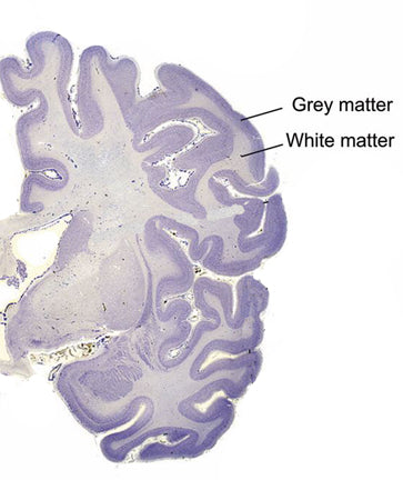 cross section of the brain showing grey matter.