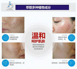 Free Shipping | Bioaqua Acne Treatment Blackhead and Scar Remover Anti Acne Oil Control Shrink Pores and Whitening 30gm Bioaqua - iWynx