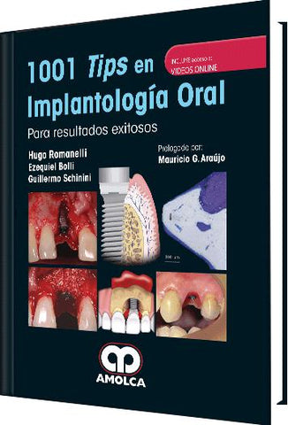 1001 Tips en Implantología Oral-UNIVERSAL BOOKS-UNIVERSAL BOOKS