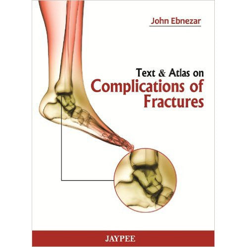 TEXT & ATLAS ON COMPLICATIONS OF FRACTURES -Ebnezar-UB-2017-jayppe-UNIVERSAL BOOKS