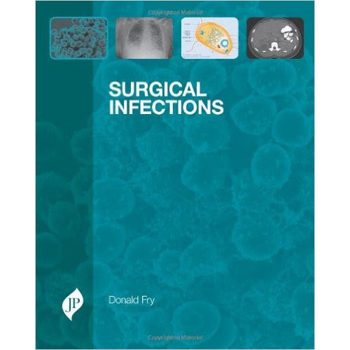 SURGICAL INFECTIONS -Fry-jayppe-UNIVERSAL BOOKS