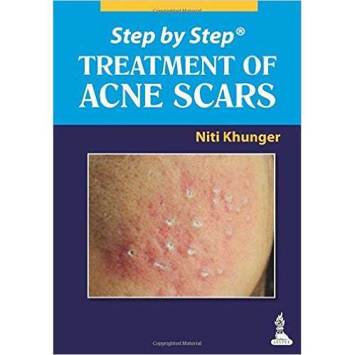 STEP BY STEP TREATMENT OF ACNE SCARS -Khunger - UNIVERSAL BOOKS
