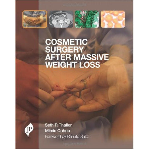 COSMETIC SURGERY AFTER MASSIVE WEIGHT LOSS -Thaller-jayppe-UNIVERSAL BOOKS