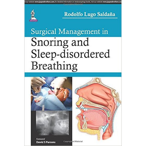 SURGICAL MANAGEMENT IN SNORING AND SLEEP-DISORDERED BREATHING- Saldana-REVISION - 26/01-jayppe-UNIVERSAL BOOKS