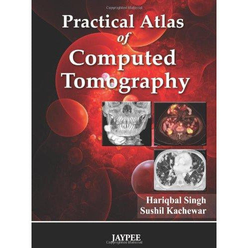 PRACTICAL ATLAS OF COMPUTED TOMOGRAPHY -Singh-REVISION - 27/01-jayppe-UNIVERSAL BOOKS